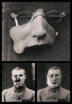 WWI facial prosthesis. Scary, but what a difference that prosthesis must have made for that person