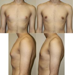 Gynecomastia surgery can be subtle, natural, and immediately life-changing for men who are plagued by breasts that are too prominent.  #PlasticSurgery #Surgery #CosmeticSurgery #Liposuction #Risperdal #Procedure #Reduction #WeightLoss #manboobs