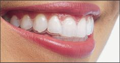 Google Image Result for http://www.dallascosmeticdentist.us/images/img/invisalign/The-Invisalign-Smile.jpg