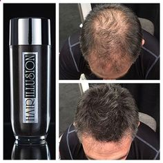 12 Best Hair Loss and Baldness Concealers You Might Want to Try | hairlosscureguide...