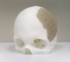 A skull produced with a 3-D printer cleared by the US Food and Drug Administration just last month was used in a surgical procedure to replace 75 percent of a man's skull earlier this month. And that technology has the potential to transform the orthopedics industry.