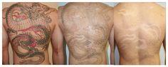 Tatuaż  zakryj to!#internet #refleksja #tattoo refleksja