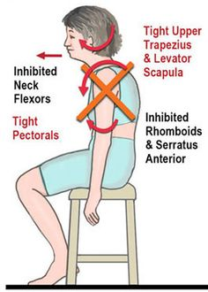 Causes: bad posture, desk, over exercising, injury. Over time, a muscular imbalance occurs known as The Upper Crossed Syndrome which ELEVATES the first rib. Then, shoulder muscles (the subscap, and infraspinatus) get trigger points, weakness and pain. Now, the shoulder is unable to move normally. Then ppl compensate for the pain by rounding the shoulders FWD and jutting the head OUT further from the neck. The neck m (scalenes, serratus anterior, and scm) overcomp, worsening trigger points.