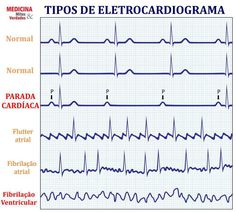 This ECG Interpretation course will show how to identify normal versus abnormal cardiac anatomy, cardiac cycle and electrical conduction through the heart. Studying Medicine, Medicine Student, Nursing School Tips, Nursing Notes, Cardiac Anatomy, Continuing Education For Nurses, Cardiac Nursing, Emergency Medical Services, Nursing Assistant