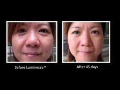 TESTIMONIAL VIDEO OF Jeunesse® Global LUMINESCE™ Amazing Before & After Photos - YouTube