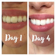 Natural Teeth Whitening Remedies Easiest, quickest and most affordable Teeth Whitening Secret Quick Teeth Whitening, Teeth Whitening Remedies, Charcoal Teeth Whitening, Natural Teeth Whitening, Charcoal Toothpaste, Acne Remedies, Beauty Hacks Eyelashes, Beauty Hacks Nails, Beauty Hacks Skincare