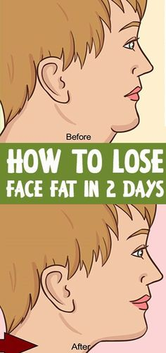 Health In Men How to Lose Face Fat in 2 days Proven Exercises and Home remedies) – Ladies Heath Mag Reduce Face Fat, Loose Face Fat, Reduce Double Chin, Natural Face Lift, Muscle Stretches, Face Exercises, Facial Muscles, Facial Yoga, Facial Massage