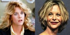 Meg-Ryan-Before-And-After-Plastic-Surgery.jpg (850×426)