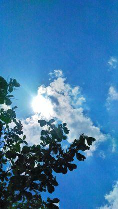 Sunshine becomes of u