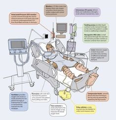 The ICU patient.  How many RN's are use to taking care of this kind of patient with their eyes closed? #ICU #RN #Nurse