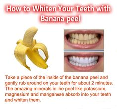 Natural Teeth Whitener  To whiten teeth with banana peel is very safe and healthy for teeth as banana peels are a wonderful source of mi...
