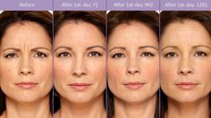 We offer Xeomin treatments for dental purposes. Xeomin is similar to botox and a side effect is, it reduces the appearance of wrinkles! We offer it at $10/injection. The treatment in this picture would cost $200 and lasts around 3 months.