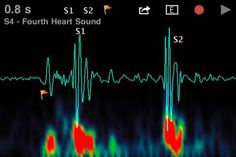 Heart/Brain synchronization...a startlingly new idea that might actually address my unresolved BP issues!