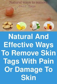 Skin tag on eyelash line are the most unattractive small skin growths that can occur on your eyes. You should know how to treat those delicate skin tags. Skin Tag On Eyelid, Skin Tags On Face, Onion Juice, Skin Growths, Skin Tag Removal, Make It Work, Skin Problems, Home Remedies, Eyelashes