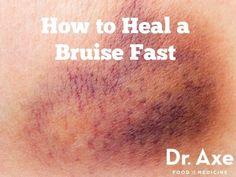 How to Heal Bruises Fast - DrAxe.com - http://draxe.com/heal-bruises-fast/