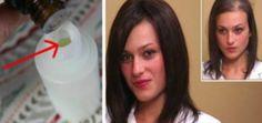 A Natural Solution Against Dandruff – Argan Oil – Hair Care Tips Argan Oil Hair, Hair Oil, Dyed Red Hair, Essential Oils For Skin, Hair Growth Treatment, Hair Loss Remedies, Hair Transplant, Super Hair, Cool Hair Color