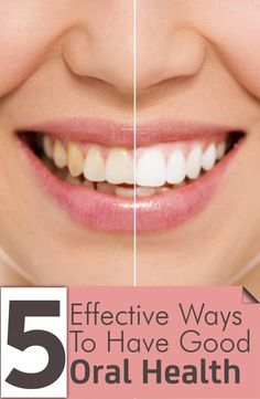 5 Effective Ways To Have Good Oral Health.