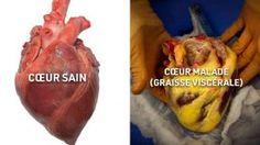 10 aliments qui nettoient vos artères naturellement et vous protègent des attaques cardiaques