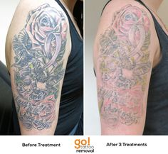 After 3 treatments using both our PicoSure and QS:Nd:YAG we've reduced the weight of this tattoo significantly.  The client's goal is full removal so another 6-8 treatments will likely be needed, but we're off to a great start!  Every tattoo will have different results, we post a wide variety of images to help set realistic expectations.    See more progress photos http://www.gotattooremoval.com/laser-tattoo-removal-progress-photos/