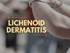 Still looking for the best remedies for lichenoid dermatitis? We've got some hot tips for applications. Home Treatment, Happy Marriage, Skin Problems, My Way, Good To Know, Remedies, Medical, Advice, Tips