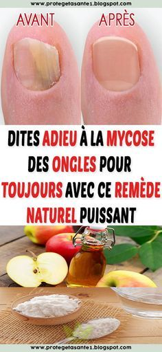 Say goodbye to nail fungus forever with this powerful natural remedy. Nail Fungus, Short Nails, Natural Cures, Fungi, Beauty Care, Nail Care, Decir No, The Cure, Health Fitness