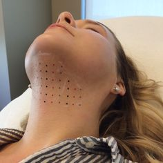 Kybella: One Patient's Story Goodbye, double chin: one patient's experience from injections Cosmetic Treatments, Skin Care Treatments, Double Chin Surgery, Double Chin Treatment, Chin Liposuction, Double Chin Removal, Facial Procedure, Chin Implant, Lip Injections