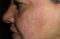 Home Remedies to Treat Rashes on the Face. I Don't Have to Worry about Those Embarrassing Spots Anymore