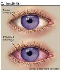 How to treat Pink Eye and other abnormalities of the Eye.