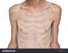 skinny man anatomy - Google Search
