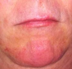 Oriental Diagnosis: Marking or discoloration on the chin indicates prostate…