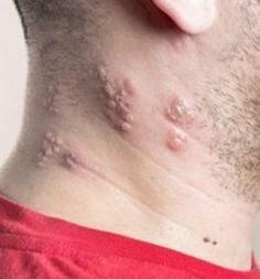 "Homemade Remedies for Shingles Virus Homesteading  - The Homestead Survival .Com     ""Please Share This Pin"""