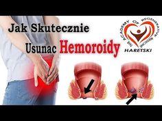 Jak Skutecznie Usunac Hemoroidy. Aliaksand Haretski - YouTube Youtube, Do Your Thing, Youtubers, Youtube Movies