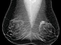Mammography Screening Intervals May Affect Breast Cancer Prognosis:   Image: Bilateral mediolateral oblique (MLO) views from screening mammography in a 53-year-old woman (Photo courtesy of RSNA).