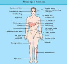 http://liverbasics/fatty-liver-symptoms.html the most, Cephalic Vein