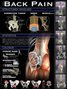 Back pain  Many of us that had accidents, some type of trauma, excessive stress and many other ailments have Fibro as a result..