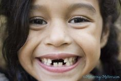 Wendy missing teeth-Mothering Matters (Tooth Fairy Prices - up