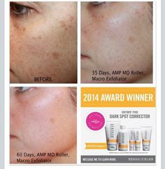 From the doctors who created ProActive...Erase sun damage and dark spots, starting today!!! 60 day money back guarantee!