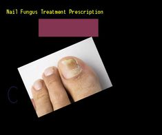 Nail fungus treatment prescription - Nail Fungus Remedy. You have nothing to lose! Visit Site Now #ToenailFungusPeople
