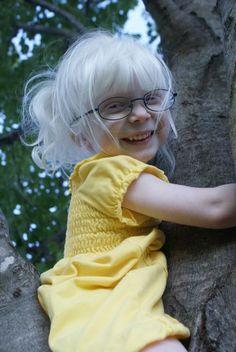 #albinism  so cute....