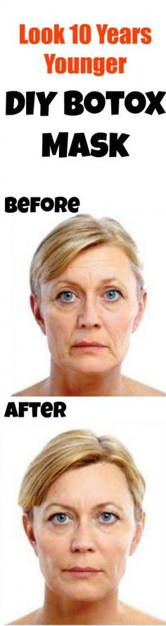 LOVE this DIY Botox mask - it actually works like a frikken miracle. Couldn't believe it! Must PIN!