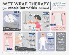 Wet pajamas for eczema