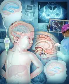 Hydrocephalus is a condition in which there is an excessive amount of cerebrospinal fluid (CSF) in chambers of the brain known as ventricles. Hydrocephalus is caused by an imbalance between the production and absorption of CSF.