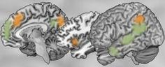 Soziale Neurowissenschaft | Max-Planck-Institut für Kognitions- und…