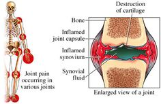 Definition Rheumatoid arthritis (RA) is an autoimmune disease. It causes pain, swelling, stiffness, and loss of function in the joints. RA usually affects the same joint on both sides of the body. It occurs mostly in the: