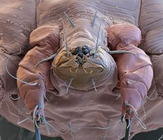 Scabies mite, SEM - Stock Image - C029/0408 - Science Photo Library