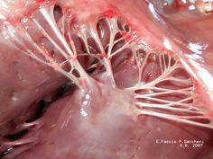 chordae tendineae (tendinous chords) or heart strings that connect the Muscolopapillare (papillary muscles) to the tricuspid valve and the mitral valve in the heart.