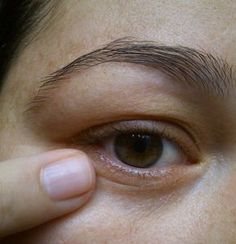 Amazing mask that removes dark circles and wrinkles Scalp Psoriasis Treatment, Beauty Makeup Tips, Beauty Care, Electronic Tattoo, Tattoo Care, Makeup Tattoos, Art Tattoos, Tattoo Removal, Tatoo