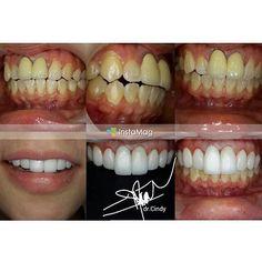HOT PROMO: dental veneers Bunny teeth/gigi kelinci Whitening teeth with veneers Recontouring teeth with veneers Space closure/ gap with veneers ALL about veneers!!!! -gigi kelinci gigi putih ala artis -merapikan gigi tanpa harus dengan behel/kawat gigi other treatment: #veneers #veneer #dentalveneers #veneering #bunnyteeth #gigikelinci #kawatgigi #braces #orthodontic #crown #bridge #implant #dentalimplant #laserbleaching #teethwhitening #bedahmulut #odontectomy #surgery #bedahgrahambungsu…