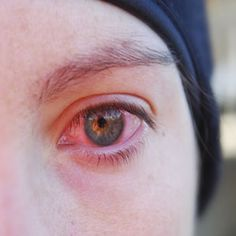 12 Most Effective Natural Cures For Eye Infection