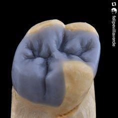 """""""Enceramento pronto pra virar Dissilicato de Lítio """" Estética  Os melhores casos na @deolhonaodonto Caso: @felipevillaverde #Emax #EmaxPress #AnatomiaDental #BiomimeticDentistry #DentalAnatomy #CosmeticDentistry #ReabilitaçãoOral #OdontologiaEstética by deolhonaodonto Our Cosmetic Dentistry Page: http://www.myimagedental.com/services/cosmetic-dentistry/ Google My Business: https://plus.google.com/ImageDentalStockton/about Our Yelp Page: http://www.yelp.com/biz/image-dental-stockton-3 Our…"""